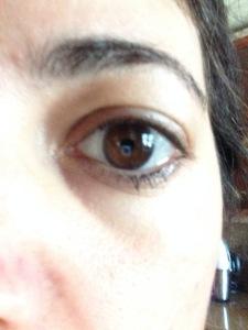 eye gel before2
