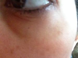 Eye gel after1